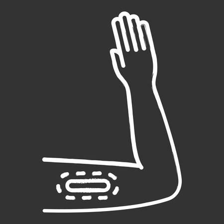 Contraceptive imlant chalk icon. Female preservative method. Unplanned pregnancy prevention, birth control with medical procedure. Underskin input on arm. Isolated vector chalkboard illustration Reklamní fotografie - 134837317