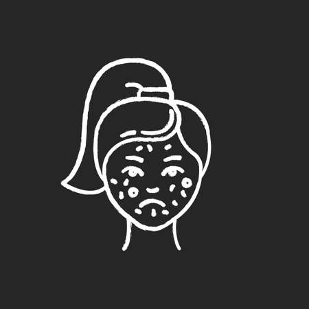 Acne chalk icon. Pimples on female face. Skincare for inflammation and irritation. Facial treatment. Puberty and teenager health problem. Dermatology. Isolated vector chalkboard illustration