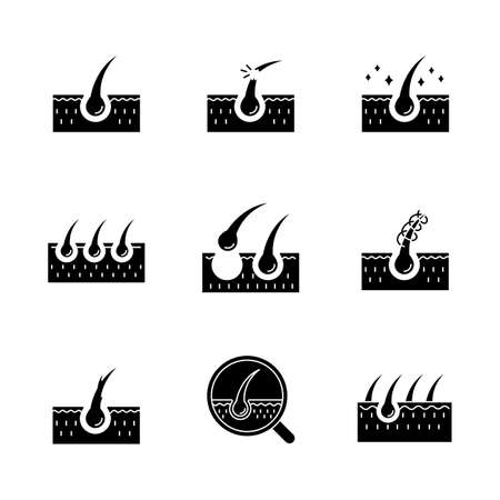 Hair loss black glyph icons set on white space. Damaged hair, unhealthy roots. Scalp and follicle. Skin tissue. Alopecia and balding. Silhouette symbols. Vector isolated illustration Ilustração