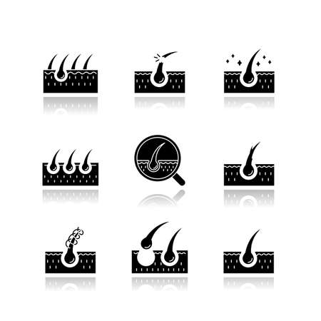 Hair loss drop shadow black glyph icons set. Damaged hair, unhealthy roots. Scalp and follicle. Skin tissue. Dermatology treatment, haircare problem. Isolated vector illustrations on white space