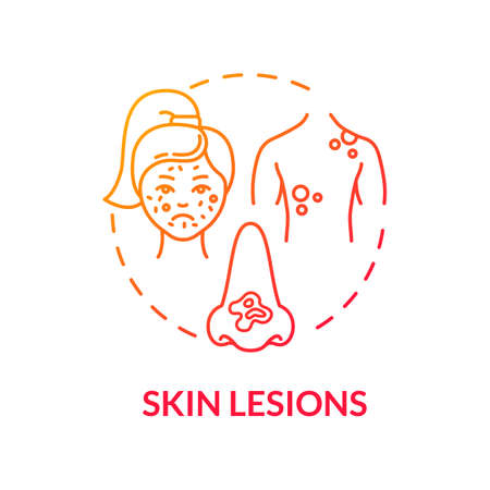 Skin lesions concept icon. Dermatology. Skin moles and growths. Self examination. Abnormal colored epidermis idea thin line illustration. Vector isolated outline RGB color drawing