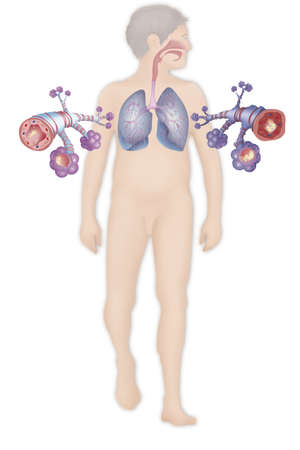 Depiction Of A Healthy Bronchial Tube (Left) And A Bronchial Tube During An Asthma Attack (Right) LANG_EVOIMAGES