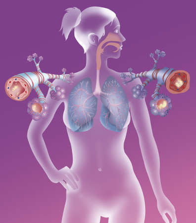 Asthma,Drawing