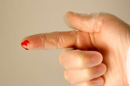 Needle Stick Injury
