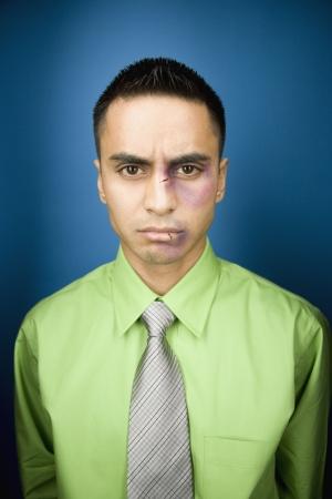 Close up of bruised Hispanic businessman Stock Photo - 16092280