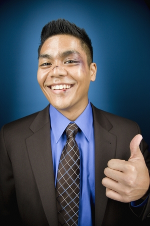 jeopardizing: Bruised Asian businessman smiling and giving thumbs up LANG_EVOIMAGES
