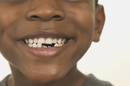 Close-up of a young boy smiling with broken teeth