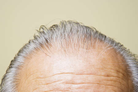 above 30: Close up of grey hair on top of elderly manÃs head