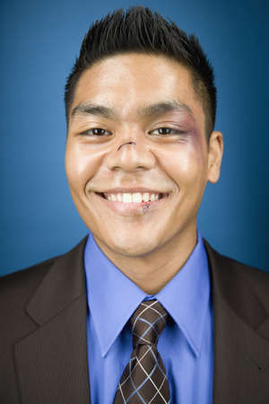 bruised: Bruised Asian businessman smiling LANG_EVOIMAGES