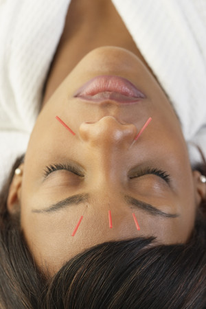 Acupuncture needles in African womans face Imagens