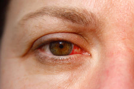 Close up of one annoyed red blood and health eye of female affected by conjunctivitis or after flu, cold or allergy. Concept of disease and treatment.