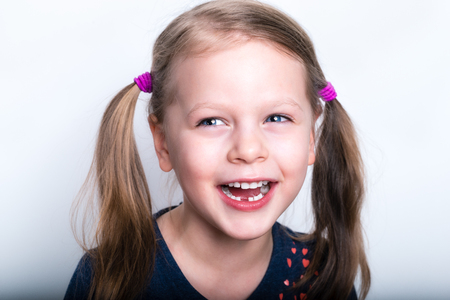 teething: Child girl dropped the first milk tooth - preschooler girl with open mouth without milk tooth Stock Photo