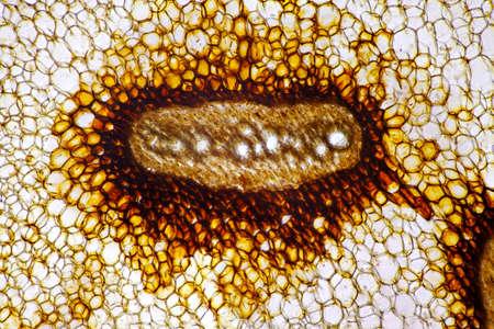 magnified: Microscopic view of Eagle fern (Pteridium aquilinum) vascular bundle. Frond stem cross section. Brightfield illumination. Stock Photo