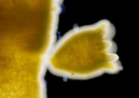 polyp: Green hydra (Hydra viridissima) young polyp (retracted). Darkfield illumination.