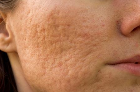 La jeune fille à la peau et des cicatrices d'acné problématique Banque d'images