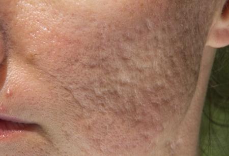 pus: Cicatrici brufolo e acne su ragazze affrontano