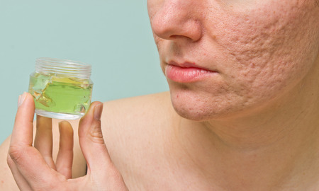 Girl with problematic skin holds transparent aloe gel box photo