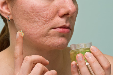 Girl applying aloe gel to problematic skin with acne scars