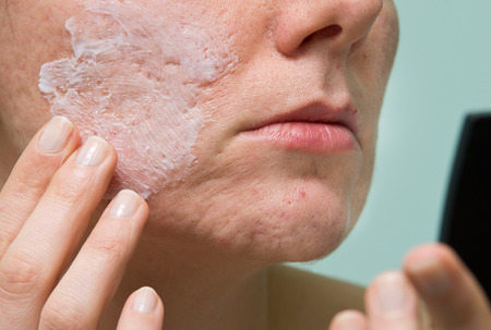 problematic: Cream applying to problematic female skin with acne scars