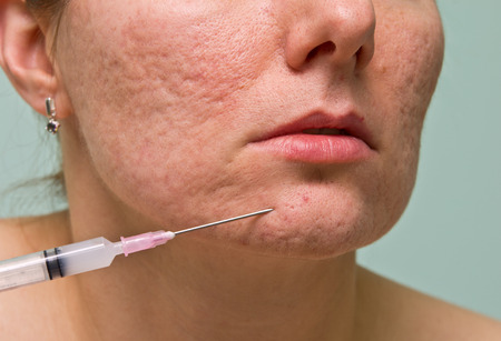 overproduction: Acne treatment with injection on girl