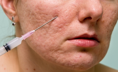 overproduction: Acne treatment with injection on girls chin