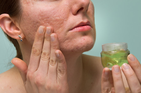 Girl applying aloe gel to problematic skin with acne scars photo