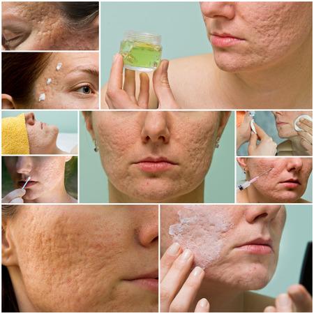 Collage di trattamento dell'acne e cicatrici da acne sul viso femminile