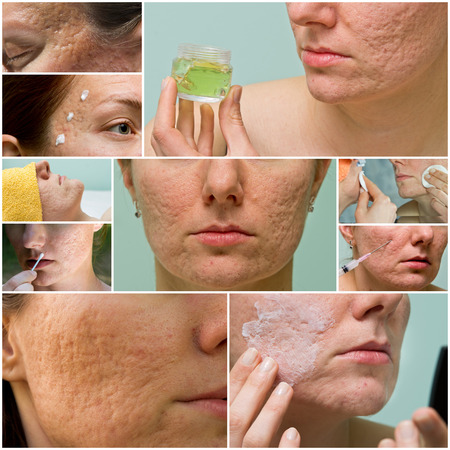 Collage of acne treatment and acne scars on female face