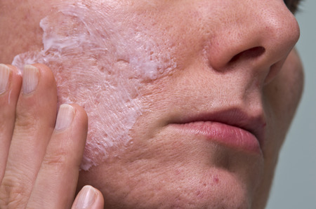 skin problem: Cream applying to problematic female skin with acne scars  Stock Photo