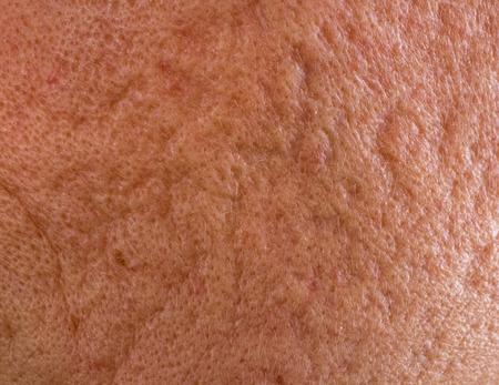 Close up der problematische Haut mit tiefen Aknenarben auf Backe