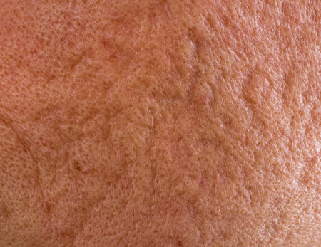 problematic: Close up of problematic skin with deep acne scars on cheek