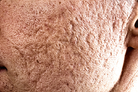 the scar: Close up of problematic skin with deep acne scars on cheek