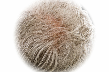scalp: Gray hair thinning on senior man scalp Stock Photo