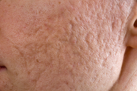 Close up of problematic skin with deep acne scars on cheek