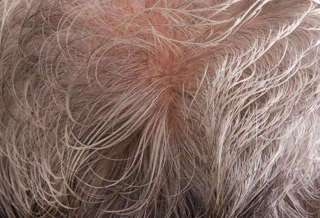 年配の男性の頭皮に薄く灰色の髪 写真素材