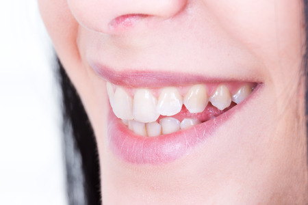 smile close up: Close up of beautiful female smile with white teeth Stock Photo