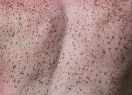 Close up of freckles on back of woman. Sensitive skin texture