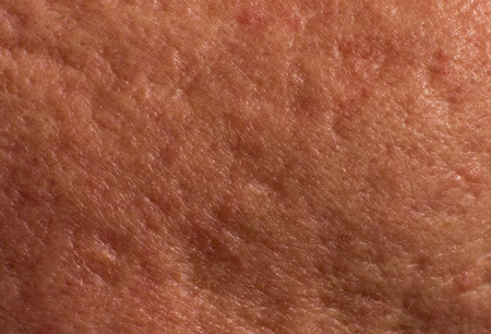 Sample of skin with acne scars. Close up of problematic part of face Stock Photo