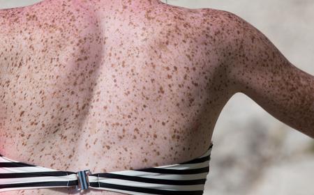 Cerca de pecas en la espalda de la mujer. Textura de piel sensible