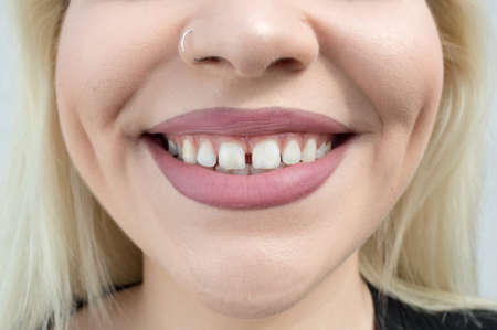 Close up of teenage girl's open mouth with gap between teeth