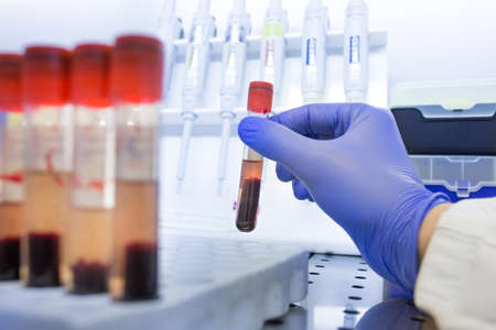 Close up of biologist's hand holding test tube with blood sample, with erythrocyte deposition