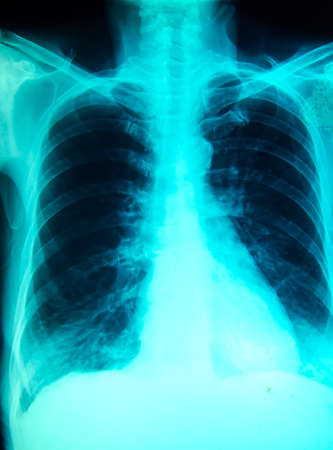 chest x-ray for diagnosis in hospital photo