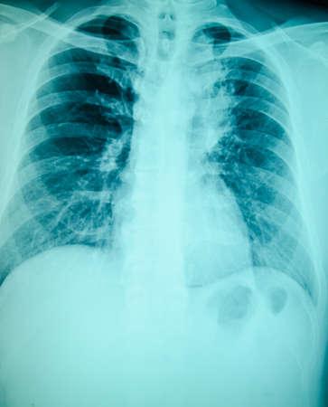 chest x-ray examination for diagnosis photo