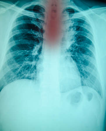 chest xray: chest x-ray examination for diagnosis spineand cervical injury