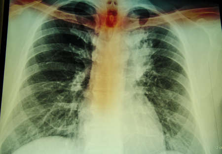 chest x ray: chest x-ray examination for diagnosis spine and cervical injury
