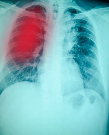 chest x-ray examination for diagnosis Pulmonary tuberculosis infection