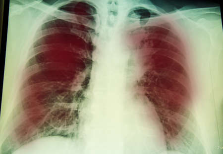 pulmonary: chest x-ray examination for diagnosis Pulmonary tuberculosis infection with  both  lung
