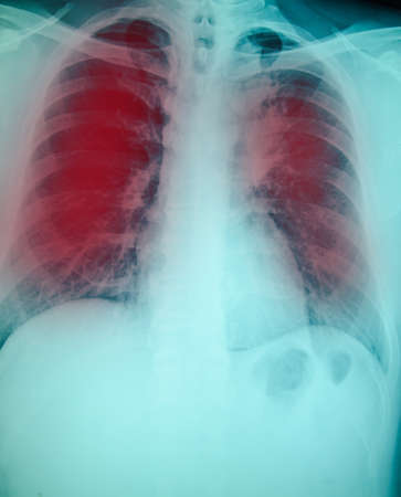 chest x-ray examination for diagnosis Pulmonary tuberculosis infection with both  lung