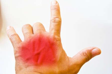 inflammatory: hand inflammatory on white background