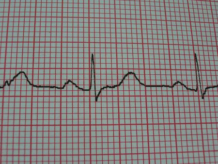 Heart Trace - normal photo